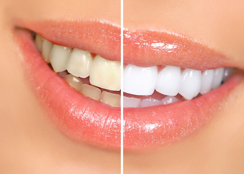 teeth whitening services in Bolingbrook, IL